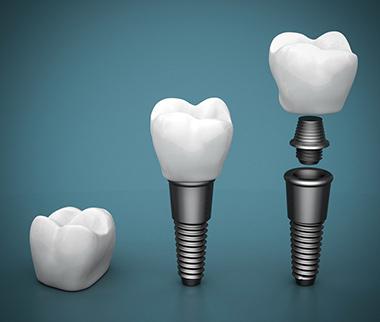Casi implantologia